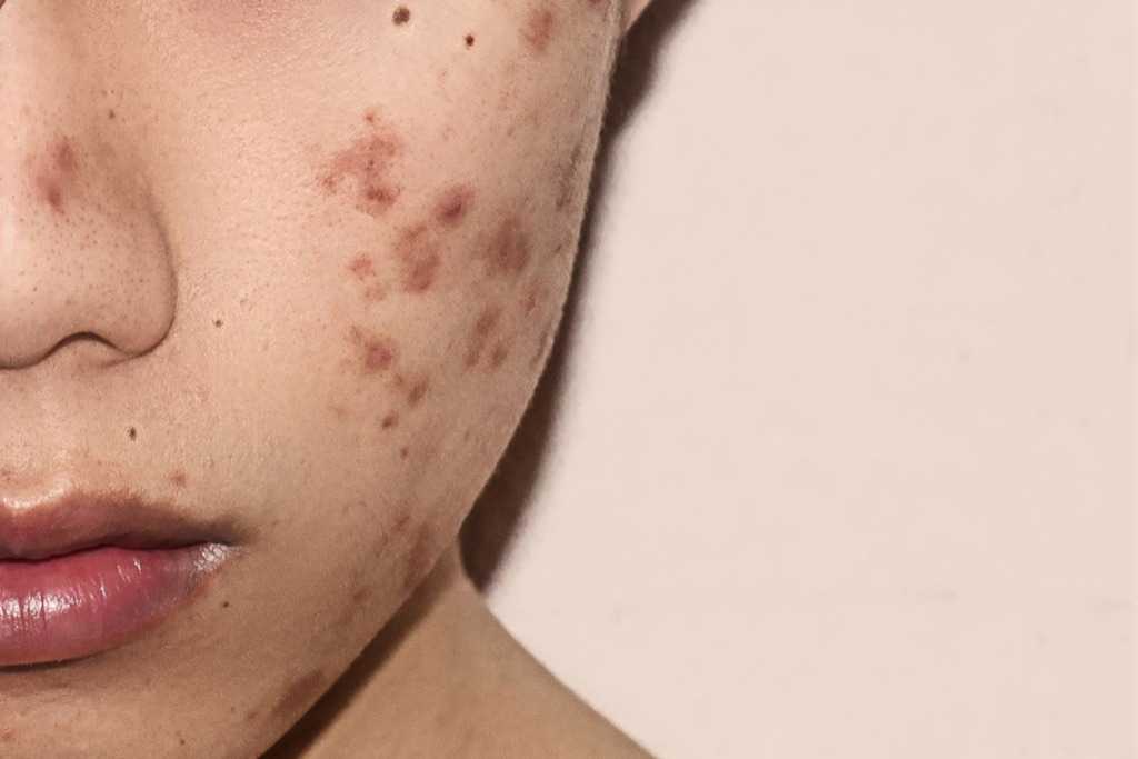 Adult Acne - What Causes It And How To Deal With It